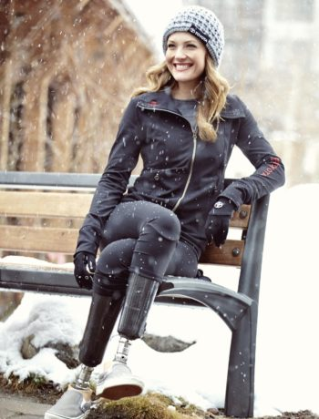 Amy Purdy Success Story3